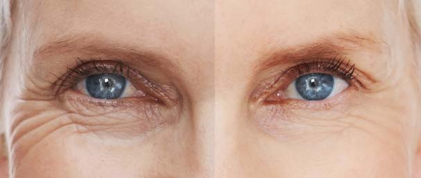 Restylane treatment for wrinkles and fine lines